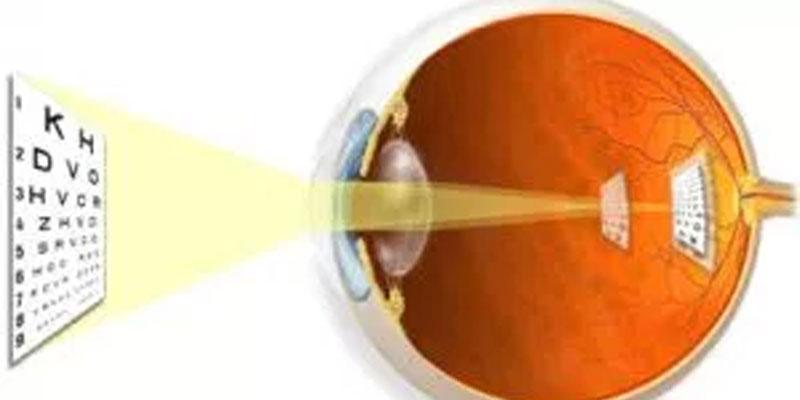 What is astigmastim?